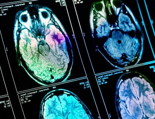 Preventiv biohacking – spåra Alzheimer 6 år innan traditionell diagnos