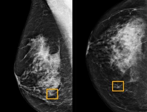 Artificiell Intelligens ökar träffsäkerheten vid diagnos av bröstcancer